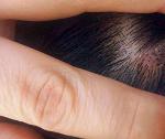 自分の汗にかぶれる!頭皮トラブル対処法