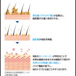 フケ・カユミの原因!?【カサカサ頭皮を潤いある頭皮へ♡ 】